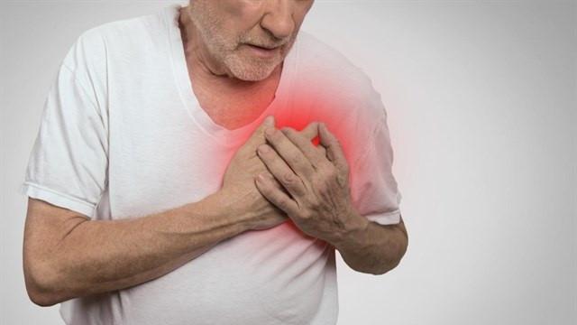 Corazonataqueinfarto