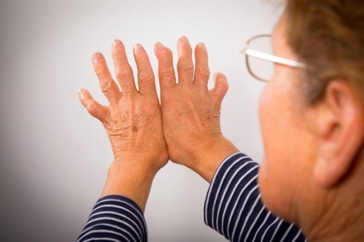 Artritisreumatologia